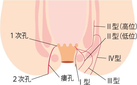 痔瘻 複雑